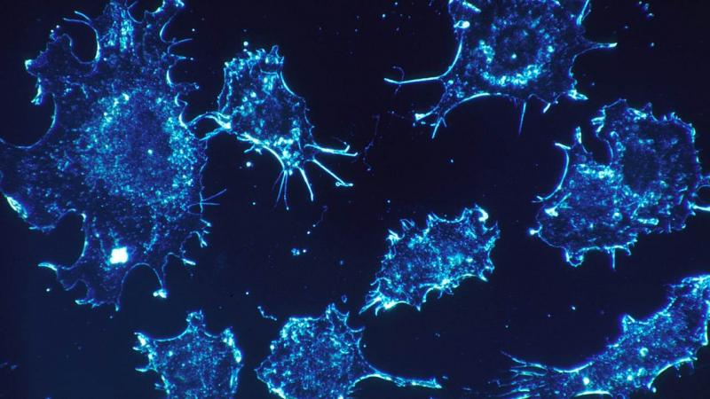 New drug pits cell's biocidal system against cervical cancer