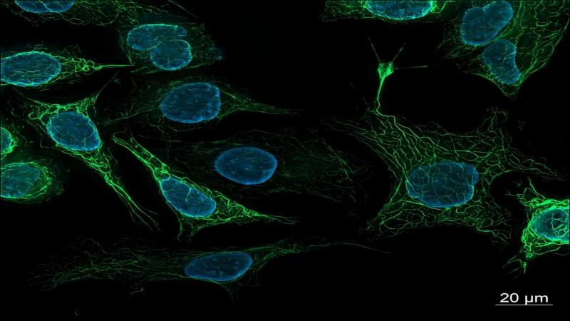 A molecular switch for feeding and fasting could hold clue to obesity and aging