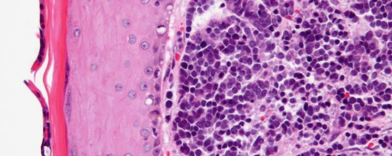 First-ever study in India investigates a rare type of cancer caused by a virus